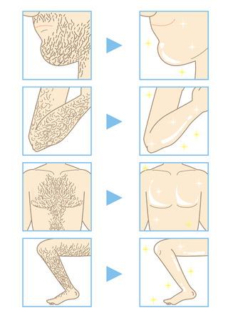 rejuvenation: Mens Beauty depilation Illustration