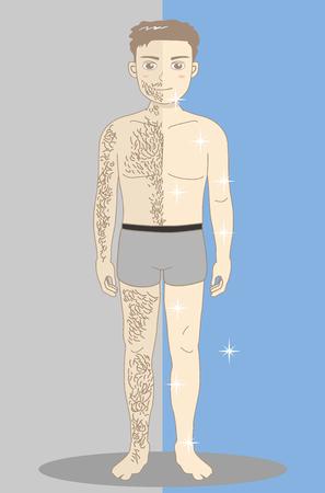 Mannen's Beauty Depilation-hele lichaam voor en na Stock Illustratie