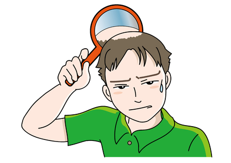 Trouble of hair loss for men Vector Illustration