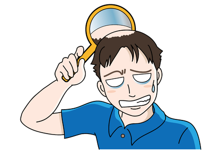 Trouble of hair loss for men