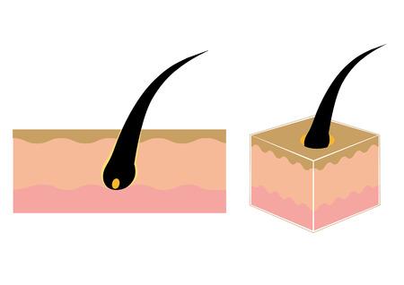 hair follicle set