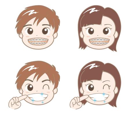 男の子と女の子の歯列矯正  イラスト・ベクター素材