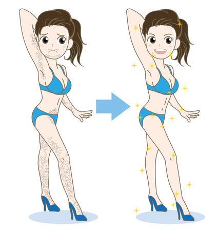 Woman epilation image-before and after illustration.