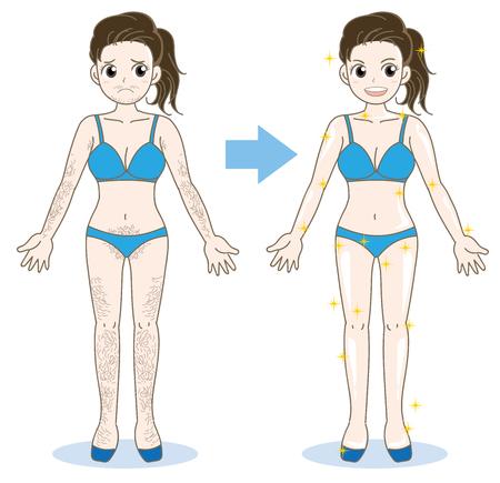 Frauenepilation Bild-vor und nach Abbildung. Standard-Bild - 92324456