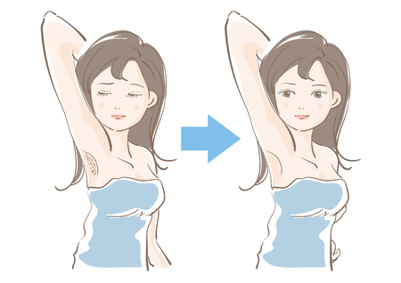 Woman epilation image before and after illustration.