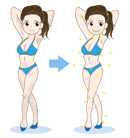 Woman epilation image-before and after vector illustration