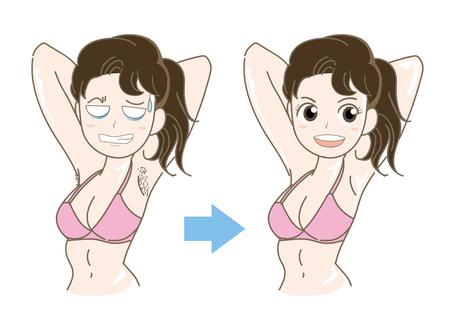 女性の脱毛画像ベクトルイラスト 写真素材 - 92268710