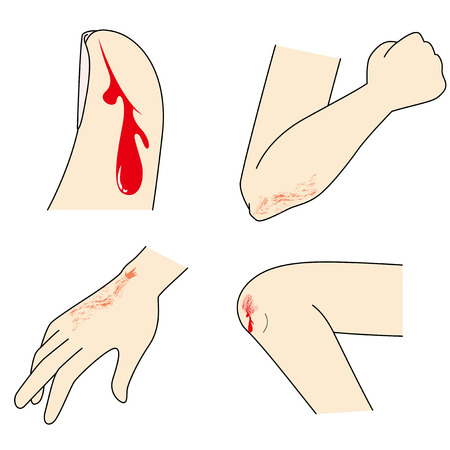 Hand and foot injuries