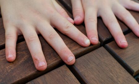 Bitten fingernails - bitten fingers. Close up of hand with bitten finger and fingernails 版權商用圖片
