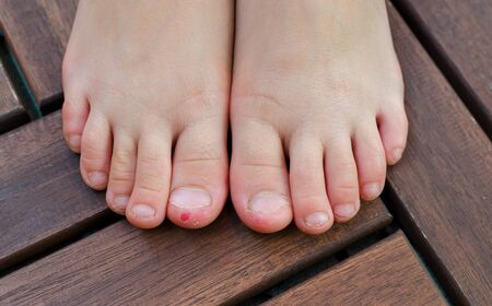 Close-up shot of bad behavior or habit of biting toes. Refer as stress, anxiety, worry and health issue. All kids toes are bitten and pinky nail is bleeding