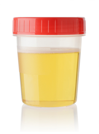 Urine sample in container isolated on white background.