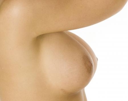 Los grandes senos desnudos femeninos mostrando implante cicatriz  Foto de archivo - 2348032