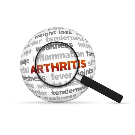 artritis: Vidrio Magnyfying hacer zoom sobre una esfera palabra artritis 3d.