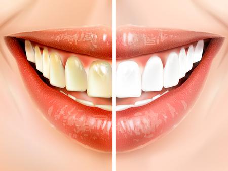 dientes sucios: comparación de 3D higiene bucal de la ilustración del nacarados dientes blancos y los dientes sucios