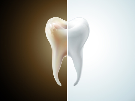 comparison of tooth care 3D illustration - pearl white and dirty tooth