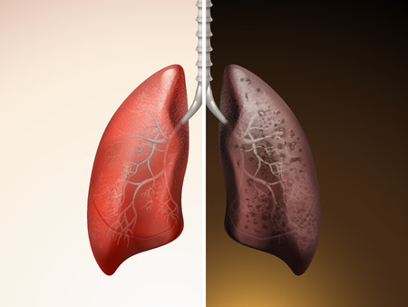 comparison of lung care 3D illustration - healthy and diseased lung Ilustração