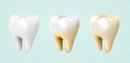 Before and after of whitening treatment, from white to yellow teeth in 3d illustration