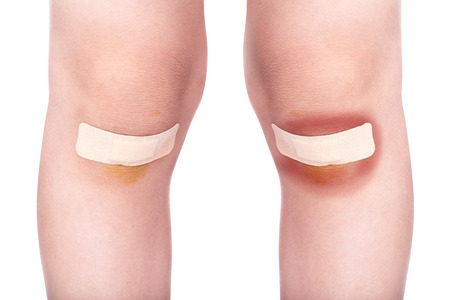 Child knee with a plaster (for wounds) and bruise, Isolated on white background