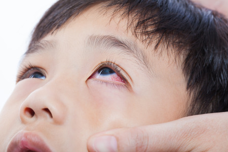 Closeup pinkeye (conjunctivitis) infection on a little asian (thai) boy, mother check up eye her son