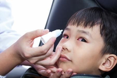 bloodshot: Closeup of doctor pouring eye drops in eye patient (conjunctivitis). Studio shot