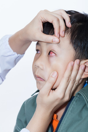 Pinkeye (conjunctivitis) infection on a little asian (thai) boy, doctor check up eye patient. Studio shot