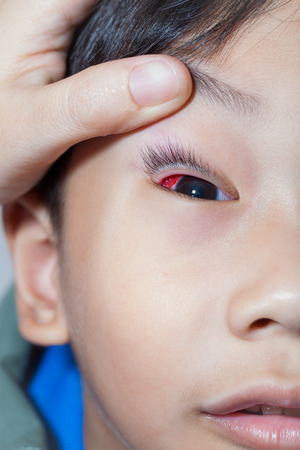 eye patient: Closeup of pinkeye (conjunctivitis) infection on a little asian (thai) boy, doctor check up eye patient. Studio shot