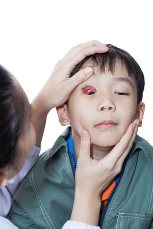 eye patient: Pinkeye (conjunctivitis) infection on a little asian (thai) boy, doctor check up eye patient. Studio shot, isolated on white background