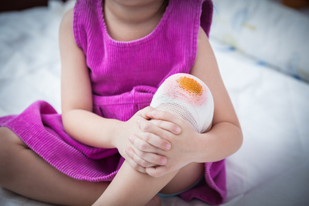 Child injured. Bloody wound on the child's knee with bandage. Shallow depth of field (DOF), selective focus, bandage in focus. Human health care and medicine concept. Vignette style. Stock Photo