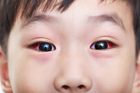 Closeup of chronic conjunctivitis with a red iris. Asian child looking at camera. Studio shot.