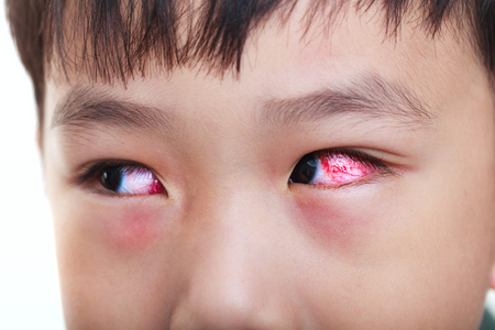 eye red: Closeup of chronic conjunctivitis with a red iris. Shallow depth of field (dof), left eye of asian child in focus. Studio shot. Stock Photo