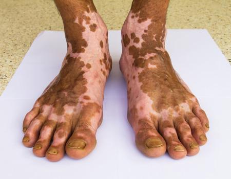 scarring: Primo piano di entrambi i piedi bruciavano ferita guarita cicatrici modello insolito. Archivio Fotografico