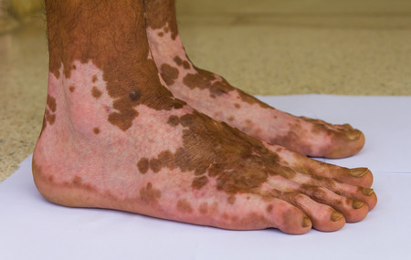 scarring: Close up of both feet were burning wound healed scarring unusual pattern.