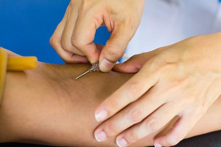 guanti infermiera: Mani nude non indossare guanti infermiera inietta una siringa nel braccio per i donatori di sangue.