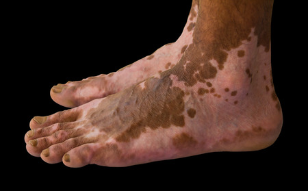 Close up of both feet were burning wound healed scarring unusual pattern.