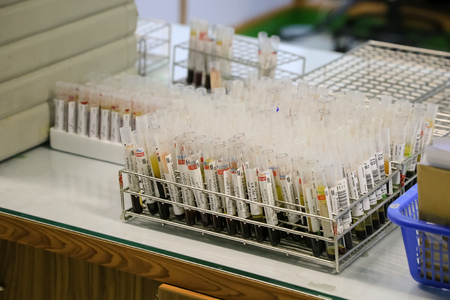 tubes prepared for centrifuge machine in hematology laboratory  blood tubes with labels in circular tray