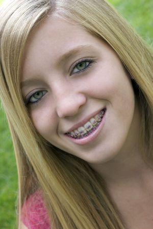 teeth braces: Braces Girl