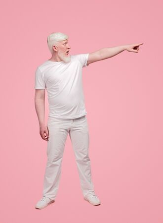 Amazed albino male pointing to side
