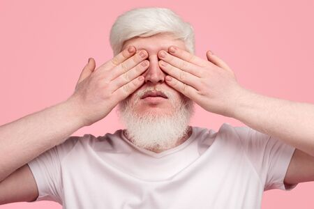 Adult albino guy covering eyes