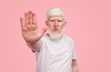 Albino man gesturing stop to camera