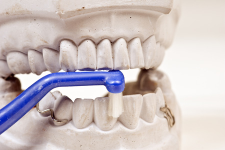 mastication: Dental mould on a white background