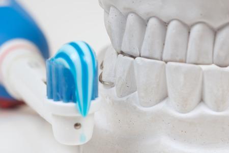 mould: Dental mould on a white background