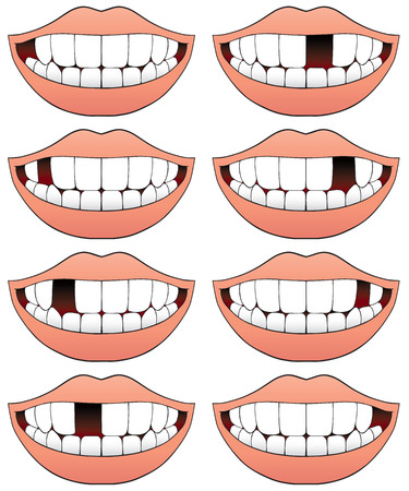 missing bite: Series of mouths with different missing tooth in each one