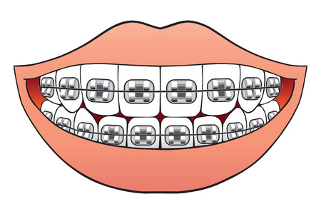 Teeth with braces pictured inside mouth Vector