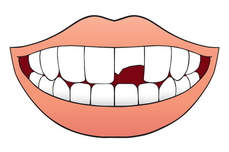 Smiling mouth with one tooth that is broken half off