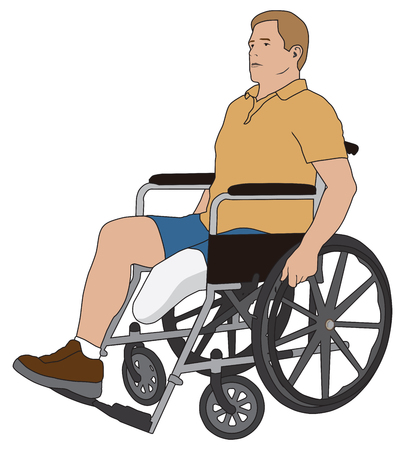 spokes: Man with left leg below knee amputation is using a wheelchair Illustration