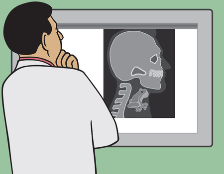 peruse: Doctor is viewing x-ray that shows his patient has a frog in his throat