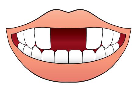 미소 짓는 만화 입에 두 개의 앞니가 없다.