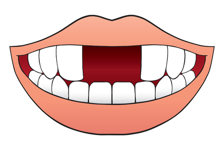 Smiling cartoon mouth is missing two front teeth 向量圖像