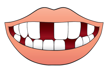 Smiling cartoon mouth with missing several teeth Ilustração