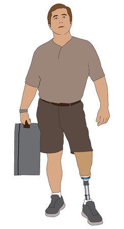 A left leg amputee on a trip is holding a suitcase and looking at a reader board Illustration
